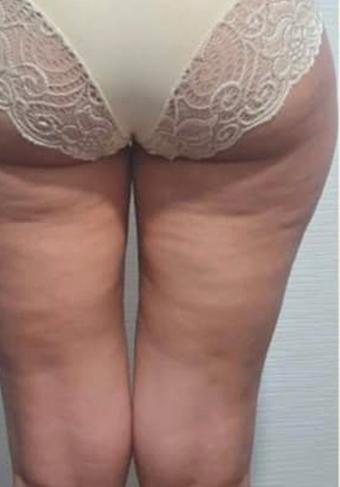 Voor en na benen3a