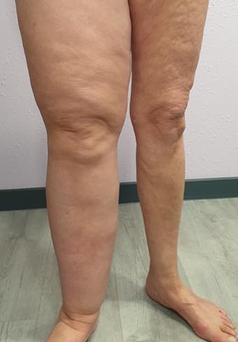 Voor en na benen4a