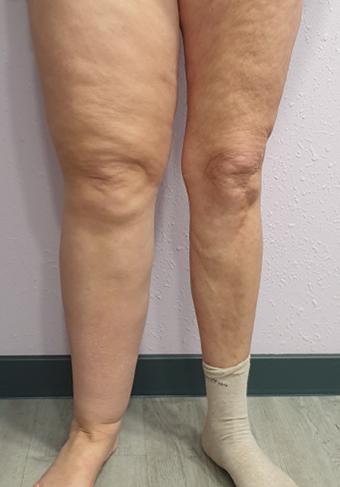 Voor en na benen4b